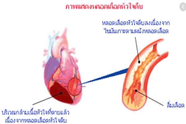 หลอดเลือดหัวใจตีบ03